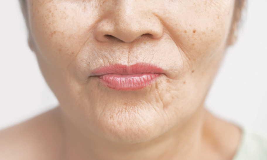 hide wrinkles